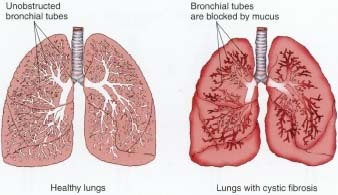 CF Condition - How it affects the lungs