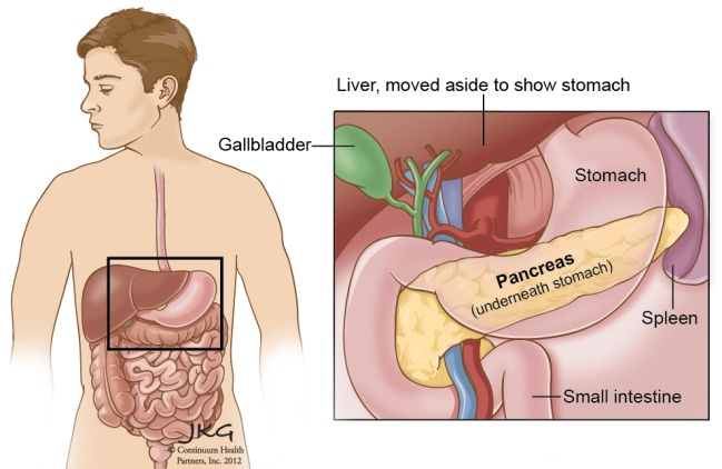 CF Condition - How it affects the pancreas